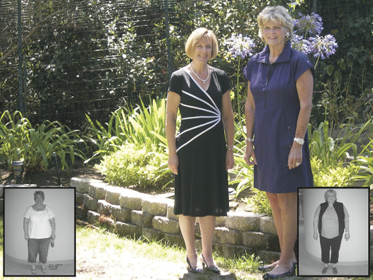 Dana and Susan, Before and After Bariatric Surgery
