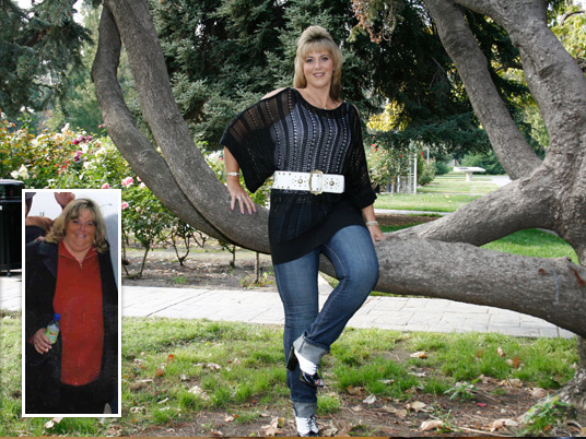 Colleen, Before and After Bariatric Surgery