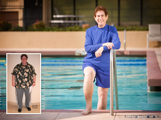 Gary S., Before and After Bariatric Surgery