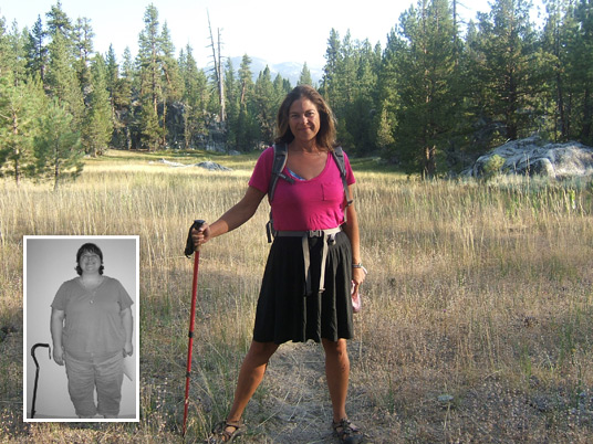 Jennifer, Before and After Bariatric Surgery