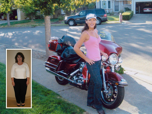Martha, Before and After Bariatric Surgery