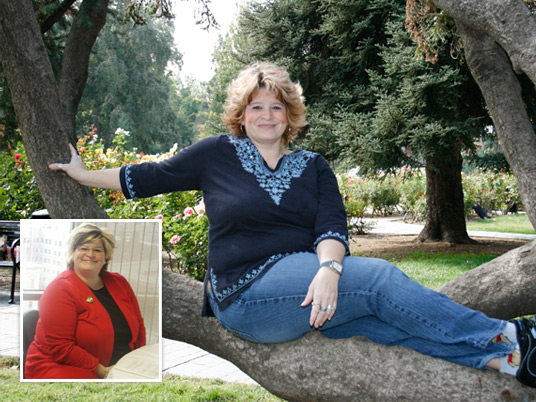 Wendy, Before and After Bariatric Surgery