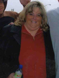 Colleen, Before Weight Loss Surgery
