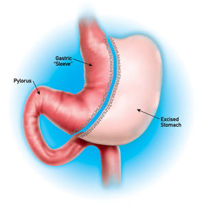 Vertical gastrectomy diagram