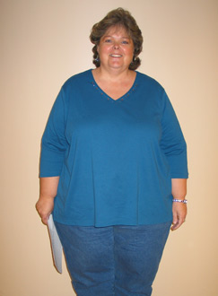 Theresa, Before Weight Loss Surgery